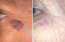 Angiomi e lesioni vascolari