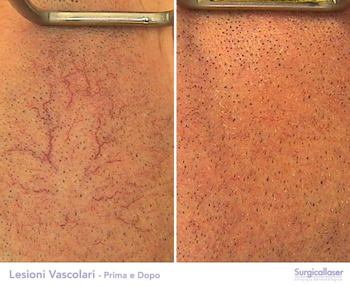 Gambe di varicosity medicina tradizionale
