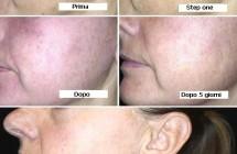 Danno solare cronico del volto